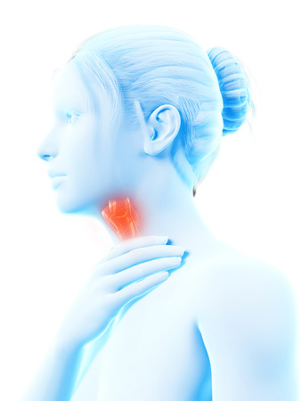 inflamed: medical illustration of a female with an inflamed larynx
