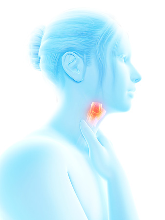 thyroid: medical illustration of a female with an inflamed larynx