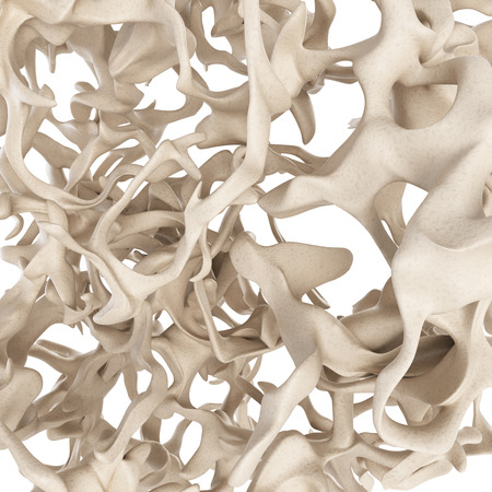 osteoporosis: ilustración científica - la estructura ósea de la osteoporosis