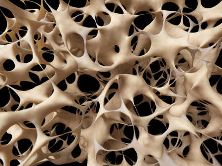 squelette: ost�oporose - structure osseuse malsain