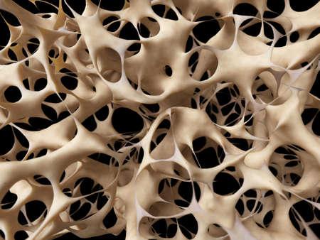 esqueleto: osteoporosis - estructura �sea poco saludable Foto de archivo