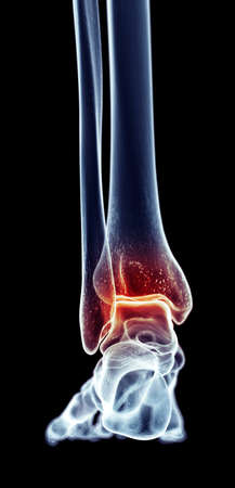 ankle: medically accurate illustration - painful ankle