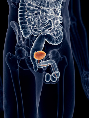 inflamed: medically accurate illustration of the bladder