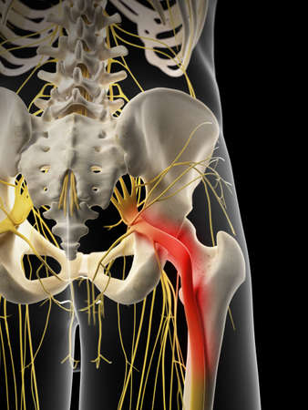 nervous: medically accurate illustration - painful sciatic nerve Stock Photo