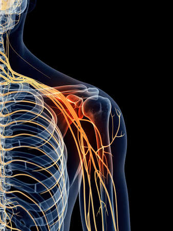 rendering: medically accurate illustration - painful shoulder nerves Stock Photo