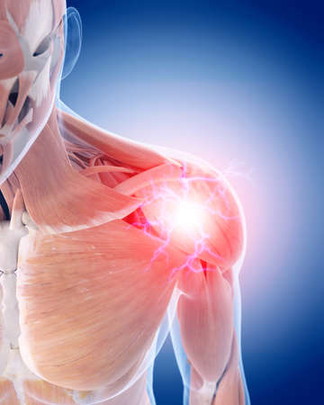 musculos: ilustración médica 3d de un hombro doloroso Foto de archivo