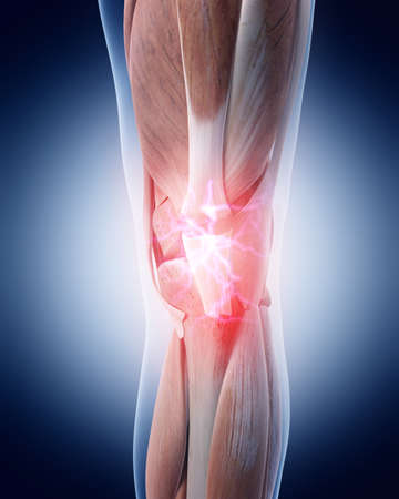 inflamed: medical 3d illustration of a painful knee