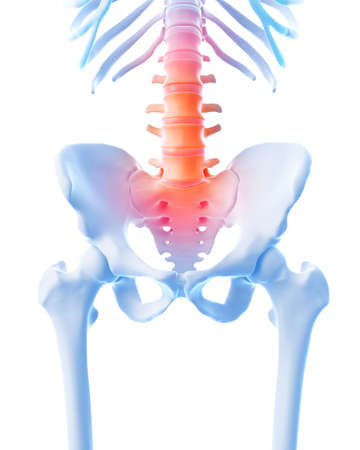 lower body: medical 3d illustration of a painful lumbar spine