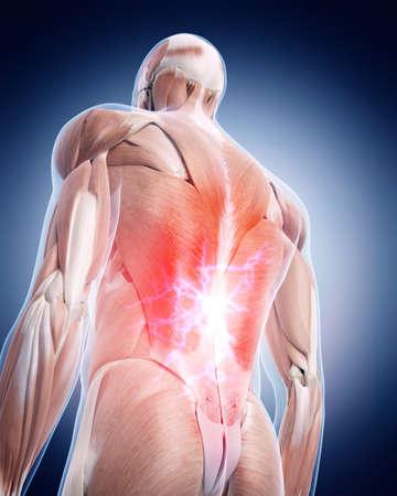 dolor espalda: ilustración médica 3d de una espalda dolorosa Foto de archivo