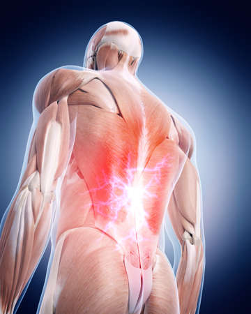 dorsi: medical 3d illustration of a painful back