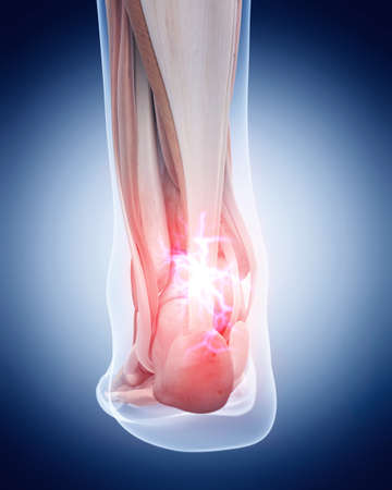 tendon: medical 3d illustration of a painful achilles tendon Stock Photo