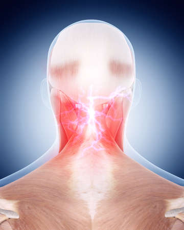human head: medical 3d illustration of a painful neck