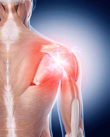 man back pain: medical 3d illustration of a painful shoulder Stock Photo