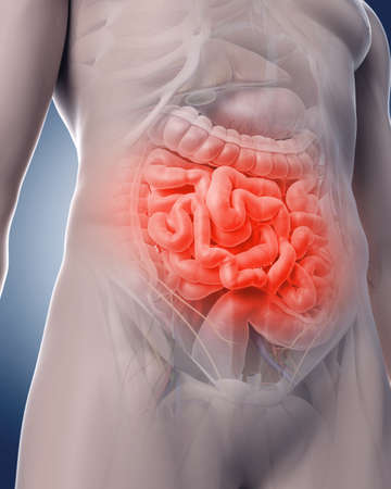 medical illustration: medical 3d illustration of a painful intestine