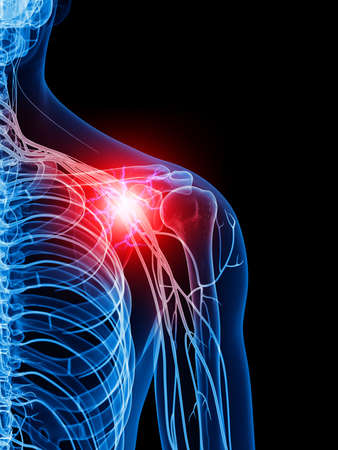 inflamed: medically accurate illustration of a painful shoulder