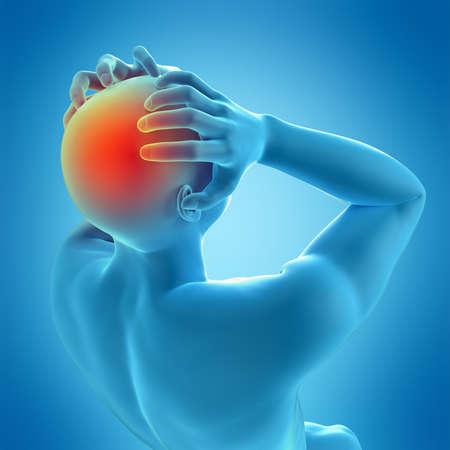 migraine: medically accurate 3d illustration of headache migraine