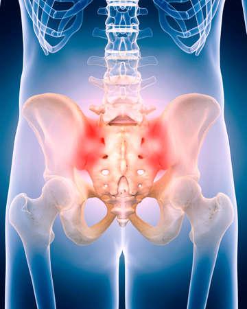 médicalement exacts 3d illustration de la hanche douloureuse