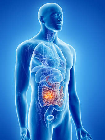 3d rendered, medically accurate illustration of small intestine cancer Stock Photo