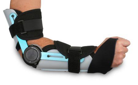 brazo roto: Brazo roto en un molde