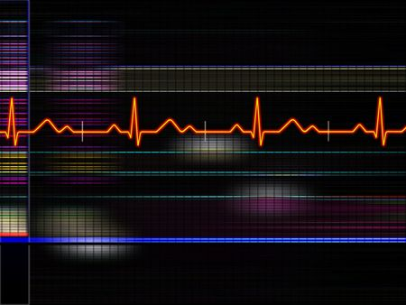 heartache: Cardiogram background Stock Photo