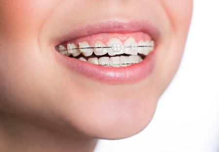 Mooie jonge vrouw met tanden bretels