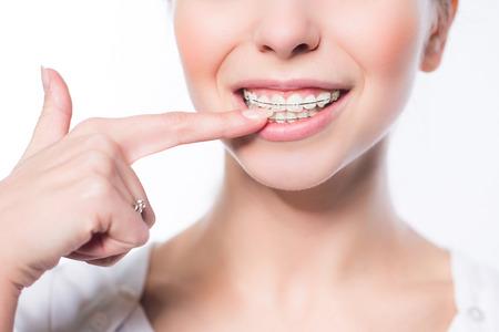 Belle jeune femme avec des accolades de dents Banque d'images