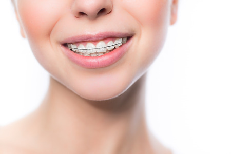 white teeth: Beautiful young woman with teeth braces Stock Photo