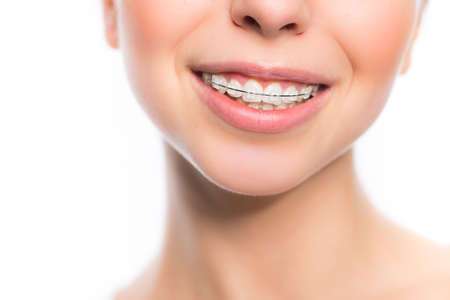 overbite: Young woman mouth with teeth braces isolated on white Stock Photo