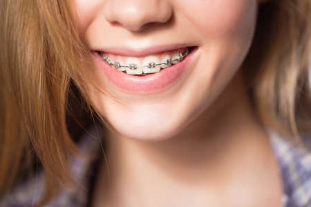 cute braces: Close up portrait of smiling teen girl showing dental braces. Isolated on white background. Stock Photo