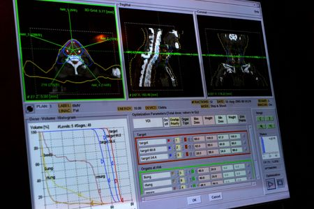 Monitoring human x-ray Stock Photo