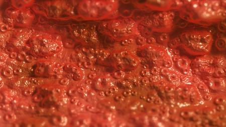 ulceras: No membrana mucosa sana o cualquier �rgano interno. 3d ilustraci�n m�dica o de fondo abstracto.
