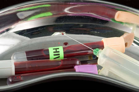 pathologist: Kidney basin with blood test tubes