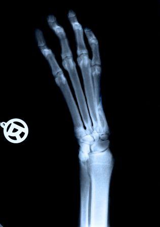 plantar: Sehr ausf�hrliche x-ray von dog's Maul