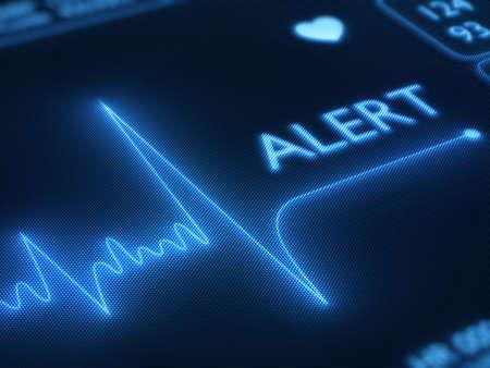 attacco cardiaco: Avviso di linea piatta su un cuore monitorare - 3d rendering sullo schermo pixelizzate dettaglio