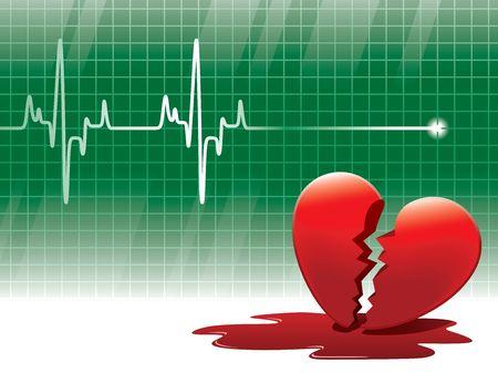 heartache: A lifeline in an electrocardiogram and a broken heart