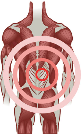 posterior: Back pain. Muscles of the back radiating pain. No meshes used. Illustration