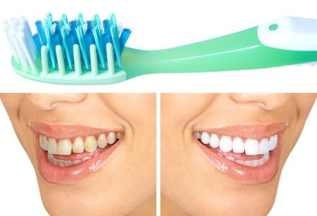 Whitening. Dental care. healthy woman white teeth. photo