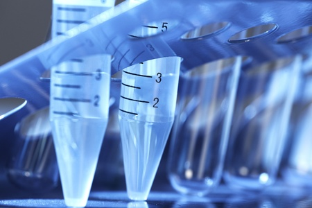 Laboratory test tube. Scientific research background. Stock Photo - 21757599