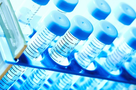 pharmaceutical research: Laboratory test tube. Scientific research background. Stock Photo