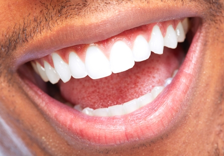 Homme afro-américaine sourire. Dental soins de santé.