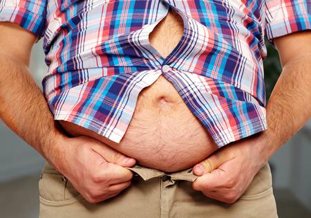 obesidad: Obesidad.