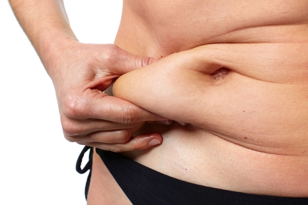 liposuction: Woman fat belly.