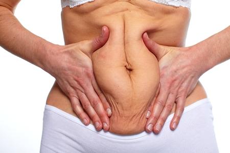 corpulent: Woman fat belly.