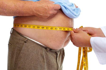 obesidad: Medición del doctor obeso gordo cuerpo de la cintura. La obesidad y la pérdida de peso. Foto de archivo