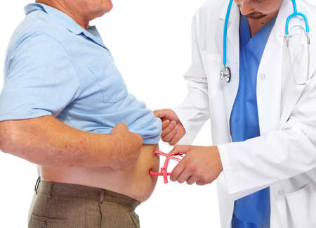 Doctor measuring obese man stomach with body fat calipers.