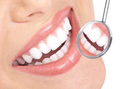 muela: Dientes de mujer saludable y un espejo de boca de dentista  Foto de archivo