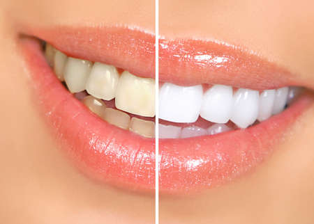 teeth whitening: Mouth and teeth before and after whitening