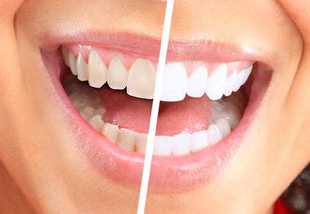 odontologia: Mujer feliz sonriendo