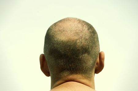vignetting: baldness(special photo fx with dark vignetting,focus point on the skin head)