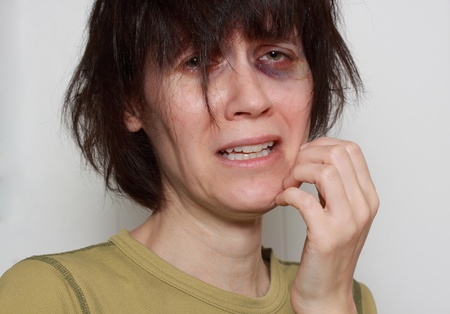 hematoma: very sad middle-aged woman with bruising under her left eye, color version Stock Photo